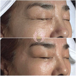 The magic of our secret facial 🔮.jpgReduction in wrinkles, improved skin tone, radiance and lumines