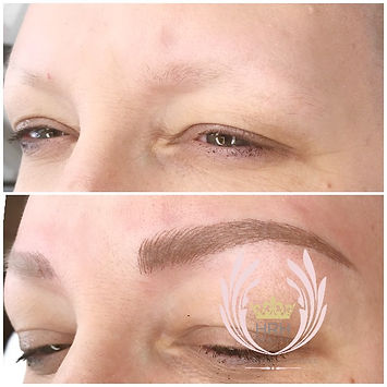 Eyebrow Microblading Tattoo Toronto On Alopecia Clients - Autoimmune Hair Loss