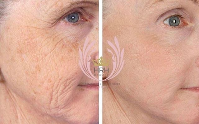 I love treating wrinkles with our secret facial! You see immediate results and the cumulative result