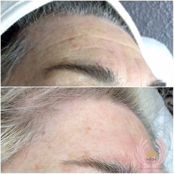 The miracles of our secret facial