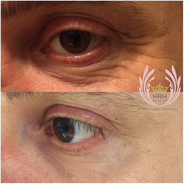 Our secret facial is excellent for removing wrinkles around the eye area or crows feet for men and w
