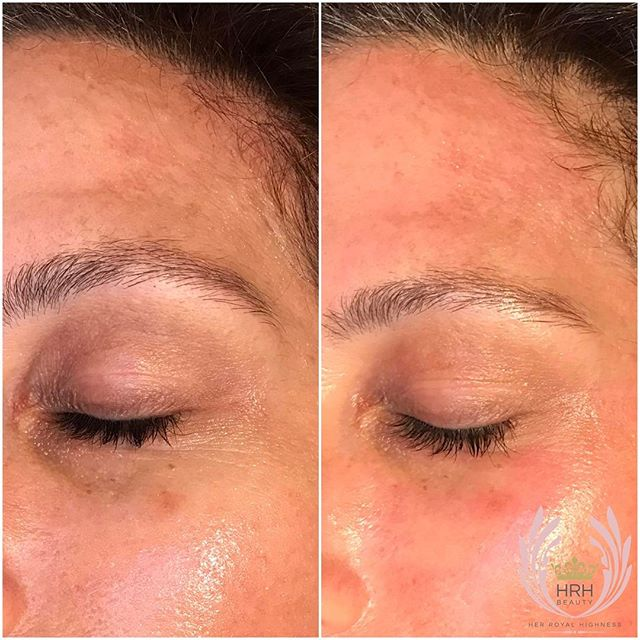 Our latest secret facial client treating melasma and dark pigmentation under eyes