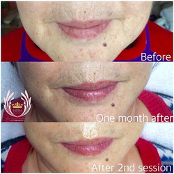 RESULTS, RESULTS, RESULTS‼️‼️ Today's secret facial client was in for their second treatment! You ca