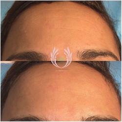 Today's secret facial client