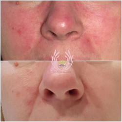Treated this lady for her rosacea and check out the results one week later! She came down all the wa