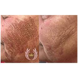 plasma fibroblast skin tightening
