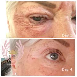 eye lift, plasma skin tightening