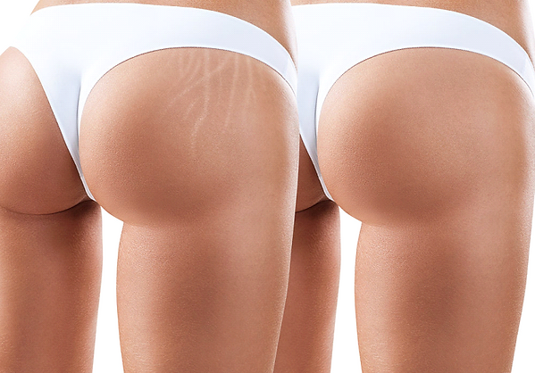 stretch mark camouflage - butt.png