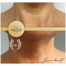 neck lift, plasma fibroblast