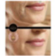 fibroblast, plasmalift, wrinkle-removal, plasma skin tightening