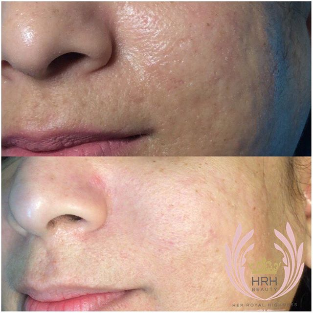 Secret facial client_ results after one treatment. Improvement in acne scarring and overall tone
