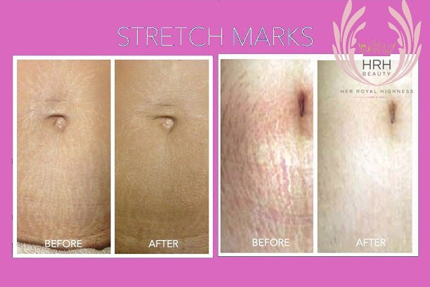Calling all #moms and those who have  lost dramatic weight! 👩‍👦 Do you have unpleasant stretch mar