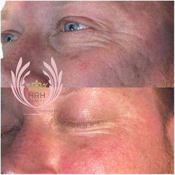 I N C R E D I B L E Results for today's BRAVE secret facial client! This is his FIRST EVER facial an