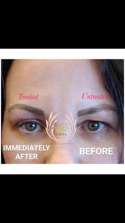 plasma fibroblast, eye lift