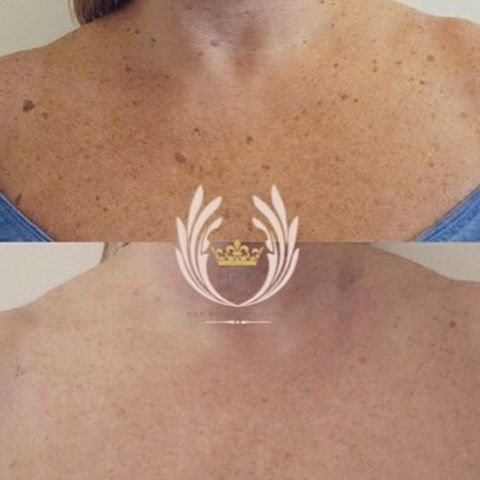 Treated a lady today for her sunspots on her chest