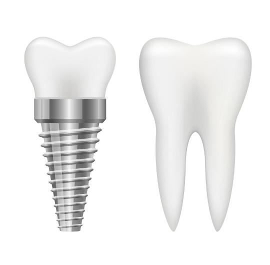 Impianto e dente naturale