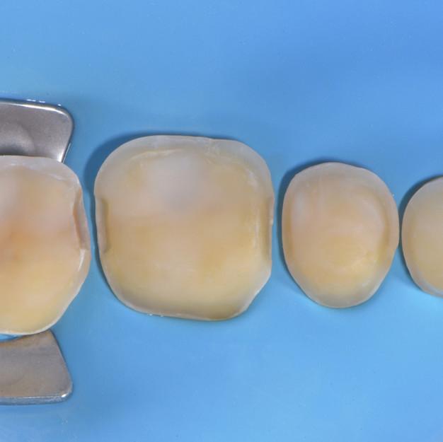 preparazione per intarsi che completeranno l'aspetto del dente come era in origine