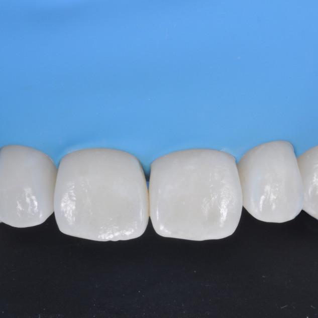 la diga di gomma è un elemento indispensabile per garantire un risultato duraturo durante le procedure di Odontoiatria Restaurativa Conservativa