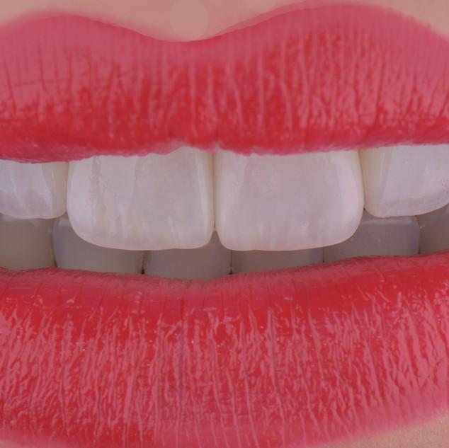 Se sei felice sorridi ma noi siamo in grado di darti un sorriso per cui essere felice