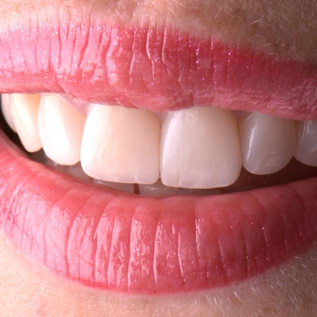 Faccette in ceramica di spessore estremamente ridotto permettono di imitare la traslucenza del dente naturale