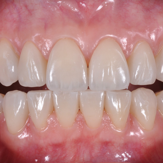parodonto sano, gengive rosa e nessun sanguinamento