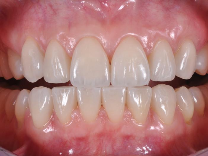 Parodonto sano