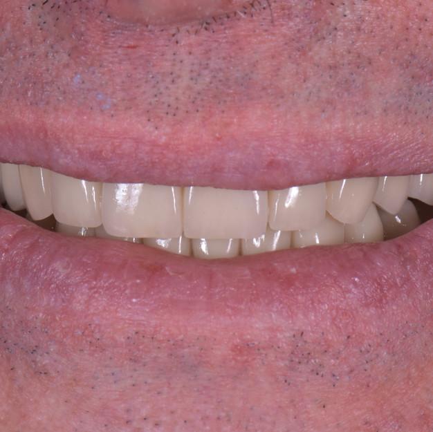 Il nostro paziente aveva purtroppo perso buona parte dei suoi elementi dentali. E' stato quindi necessario ripristinare tali elementi mancati con gli impianti e procedere con la protesizzazione. il risultato è decisamente di successo dia dal punto di vista funzionale che estetico