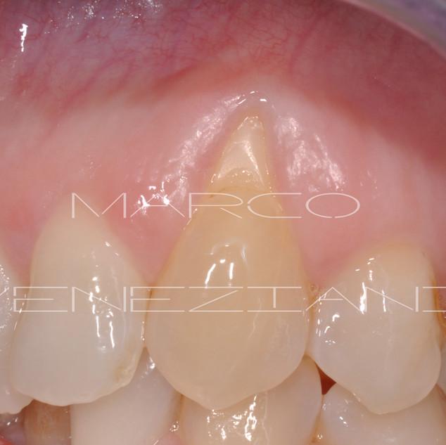Oggi con un'attenta e accurata chirurgia parodontale è possibile risolvere Recessioni Gengivali anche molto gravi. Oltre ad essere antiestetica la recessione gengivale causa dolore, poichè la parte del dente scoperta è estremamente sensibile