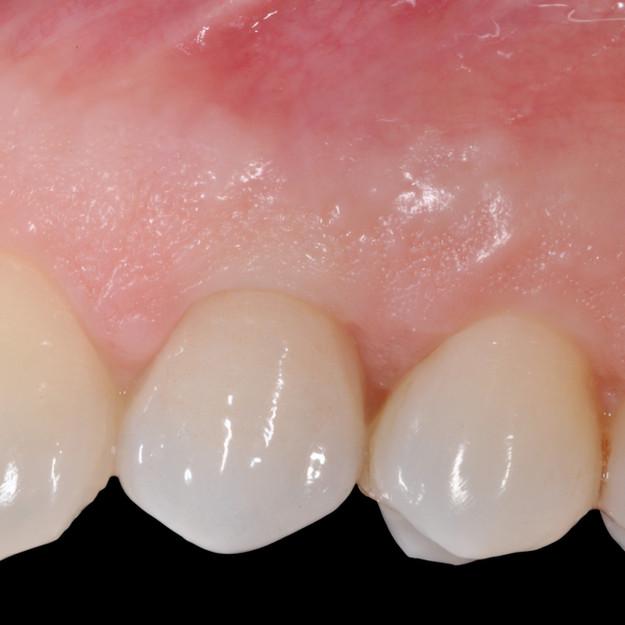 Protesi oggi significa imitazione della morfologia ovvero della forma del dente naturale e del suo aspetto in quanto a traslucenza e colorazione