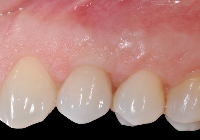 quale di questi denti è l'impianto?