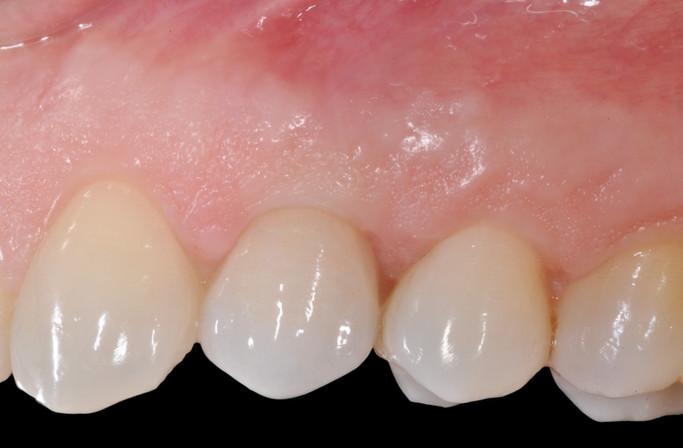 Protesi in armonia con i denti naturali