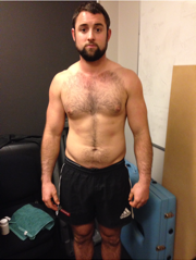 Front - Before Image of 12 week weight loss tranformation
