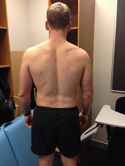 Back Side - Before Image of 8 week weight loss success story