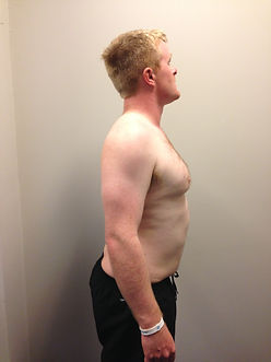 Right Side - Before Image of 12 week weight loss success story