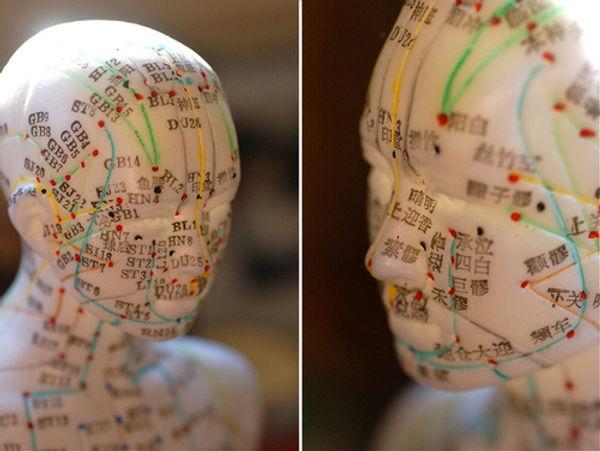 Acupuncture Speciaist in RI, MA