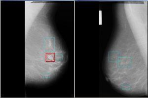 Автоматическое обнаружение новообразований на маммограммах