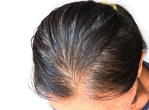 Closeup grey hair and loss in old woman
