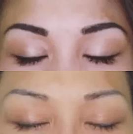 eyebrow tattoo removal, eyeliner tattoo