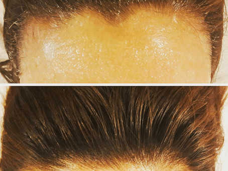 THINNING HAIRLINE?