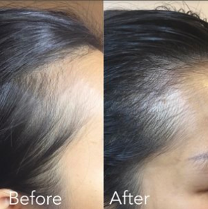 hairline restoration, smp, thinning hair