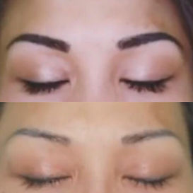 eyebrow tattoo removal, eyeliner tattoo