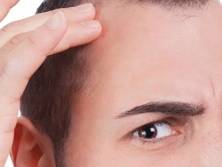 Understanding Men's Hair Loss: All You Need to Know about the Norwood Scale