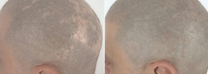 smp for alopecia before and after-min.pn
