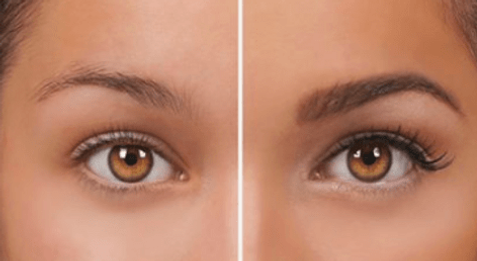 Before And After Microblading.png