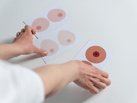 Paramedical Areola Repigmentation: What It Is and How Does Its Aftercare Work?