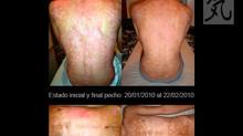 Tratamiento de la Psoriasis con Reiki