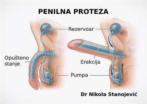 Dr Nikola Stanojević urogenitalna hirurgija beograd pejroni pejronijeva bolest operacija cena penilna proteza penilne proteze erekcija na dugme pumpica penis impotencija lečenje doktor hirurg urolog beograd srbija bel medic bolnica operaciona sala