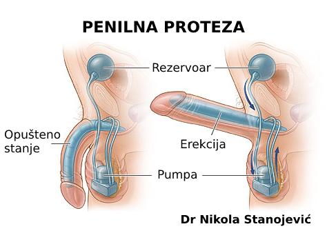 Impotencija i penilni implanti: trajno rešenje za erektilnu disfunkciju