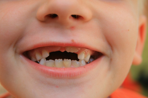 National Brush Day:  Brush twice a day and stop tooth decay