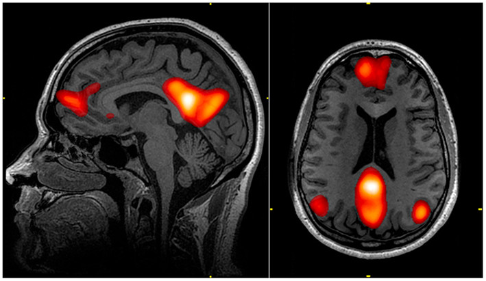 fMRI scan showing regions of the default mode network